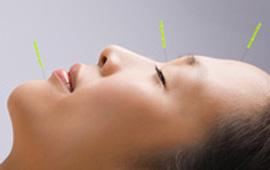 Bliv akupunktør på Københavns Akupunkturskole